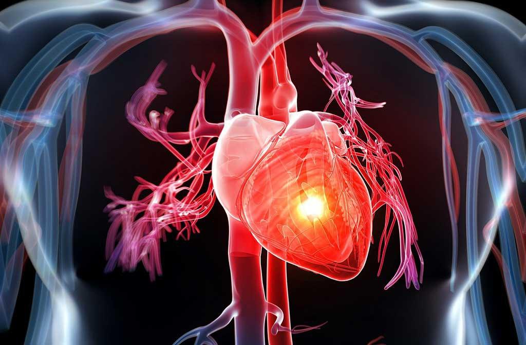 Ăn mặn là nguyên nhângây bệnh tim mạch